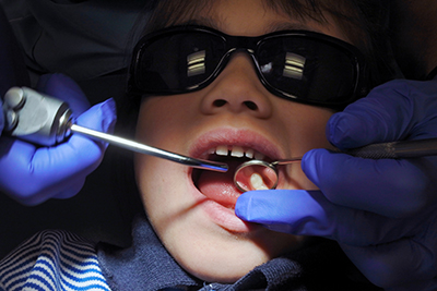 Emergency Dental Services in Logan City