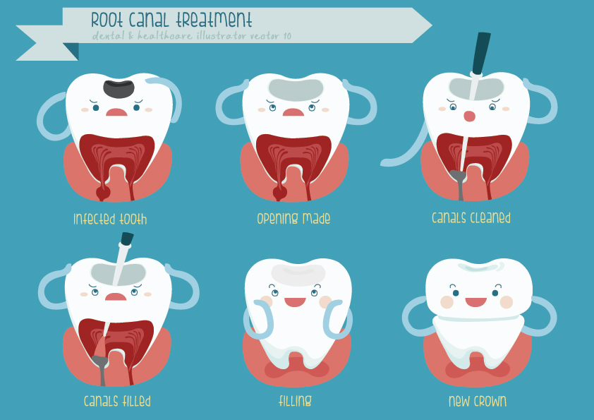Understand Root Canal Procedure