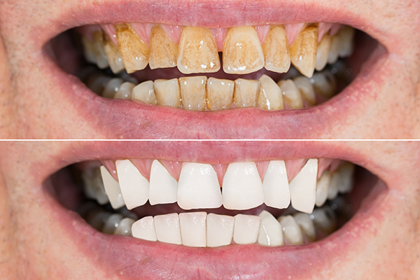 Teeth Cleaning & Scaling